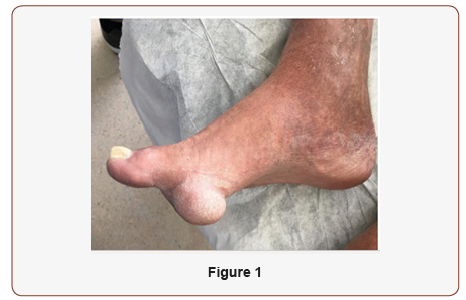 Epidermal Cyst of the Plantar Foot: A Case Study | Iris Publishers