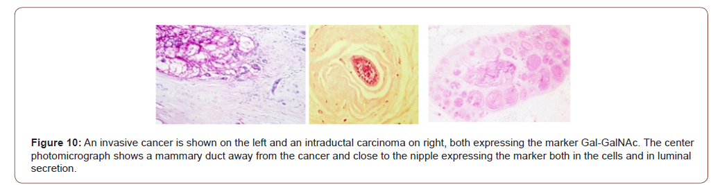 irispublishers-openaccess-cancer-research-clinical-imaging
