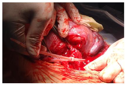 irispublishers-openaccess-gynecology-womens-health