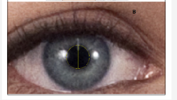 irispublishers-openaccess-ophthalmology-vision-research